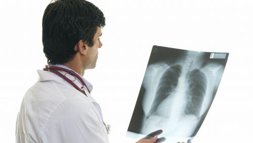 Ein Arzt schaut ein Röntgenbild an.