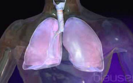 Rippenfellentzündung Video