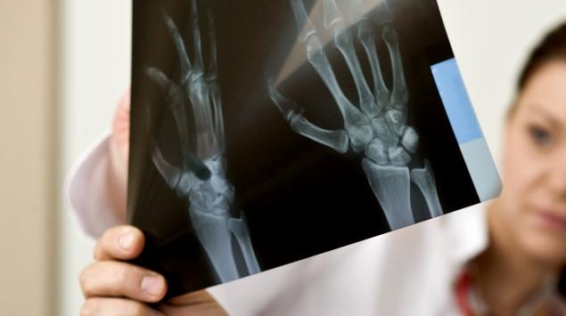 Das Bild zeigt einen Arzt, der sich eine Röntgenaufnahme mit einer Schwester ansieht.