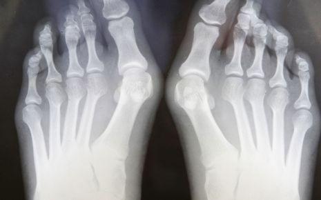 Röntgenbild von Füßen mit Hallux valgus.