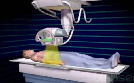 Röntgenstrahlen Video