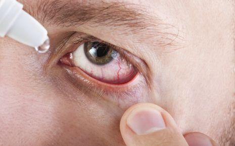 Rote Augen: Das Bild zeigt gerötete Auge eines Mannes, in das Tropfen geträufelt werden.