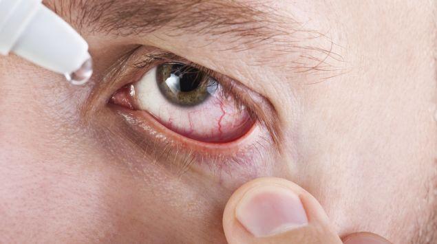 Das Bild zeigt ein männliches und gerötetes Auge, in das Tropfen geträufelt werden.
