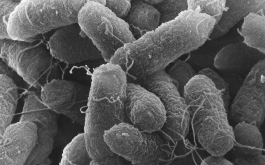 Man sieht eine REM-Aufnahme von Salmonellen.