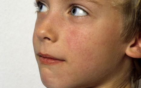 Junge mit Scharlachausschlag im Gesicht