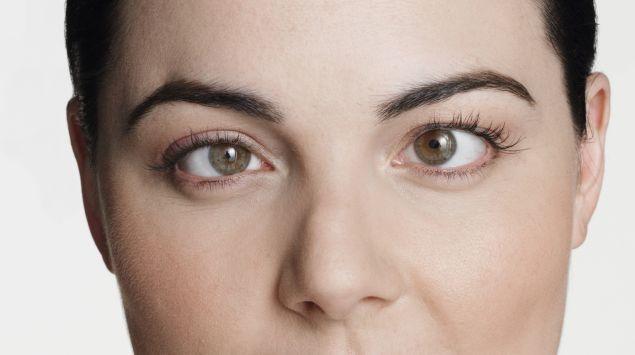 Man sieht die schielenden Augen einer Frau.
