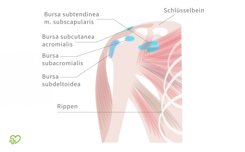 Schleimbeutelentzündung: Anatomische Darstellung der Schleimbeutel im Schulterbereich.