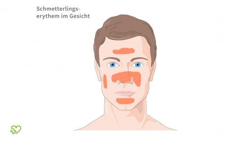 Typisch für SLE: Eine schematische Darstellung eines Schmetterlingserythems im Gesicht.