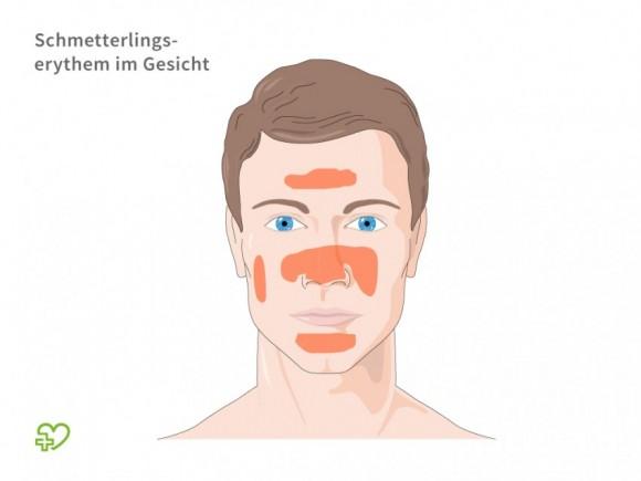 systemischer lupus erythematodes (sle): welche symptome typisch