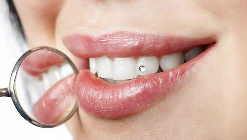 Das Bild zeigt Mund und Zähne einer Frau.