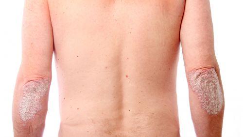 Das Bild zeigt Ellenbogen eines Mannes, die Hautveränderungen haben.
