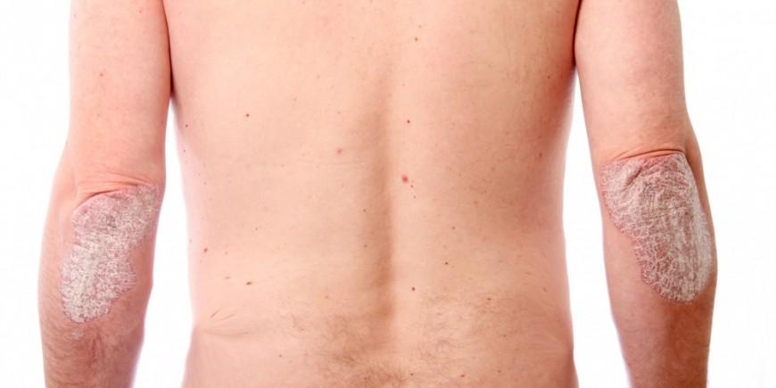 Nejrodermit die Behandlung und die Prophylaxe