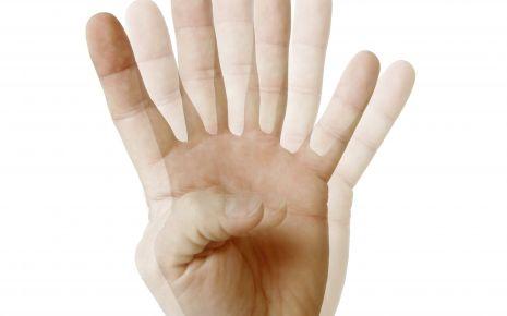 Sehstörungen: Man sieht vier Finger einer Hand.