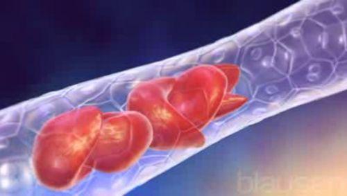 Sichelzellenanämie Video
