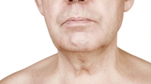 Die Halspartie eines älteren Mannes
