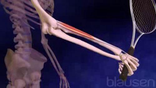 Tennisarm Video