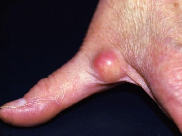 Грибок между пальцами в домашних условиях как лечить 254