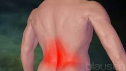 Video Untere Rückenschmerzen