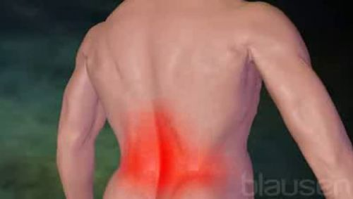Untere Rückenschmerzen Video