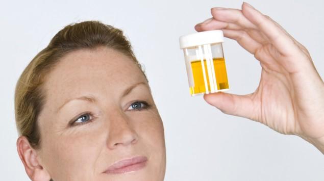 Das Bild zeigt eine Krankenschwester, die eine Urinprobe in der Hand hält.