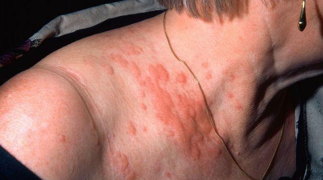 Das Bild zeigt eine für Urtikaria typische Hauterscheinung am Hals.