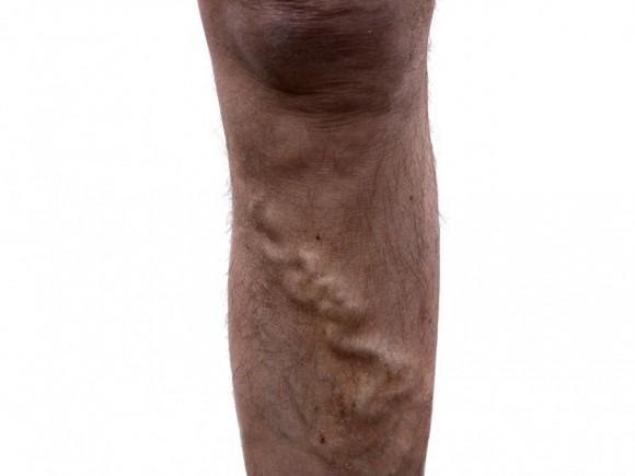 Wie die Blutaderentzündung auf dem Bein gezeigt wird