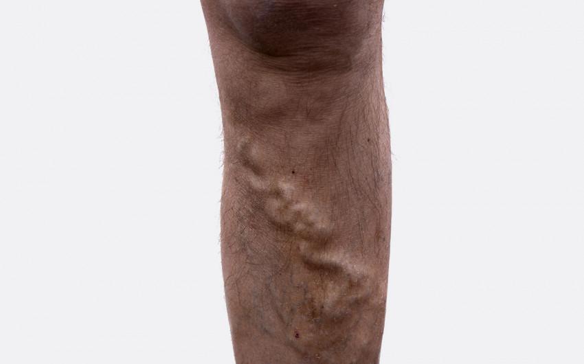 Man sieht ein Bein mit Krampfadern im fortgeschrittenen Stadium (Varikose).