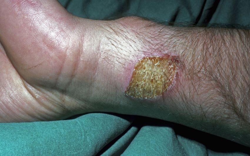 Das Bild zeigt eine Verbrennung am Arm.