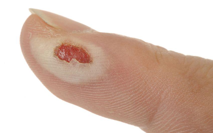 Das Bild zeigt eine Verbrennung am Finger.