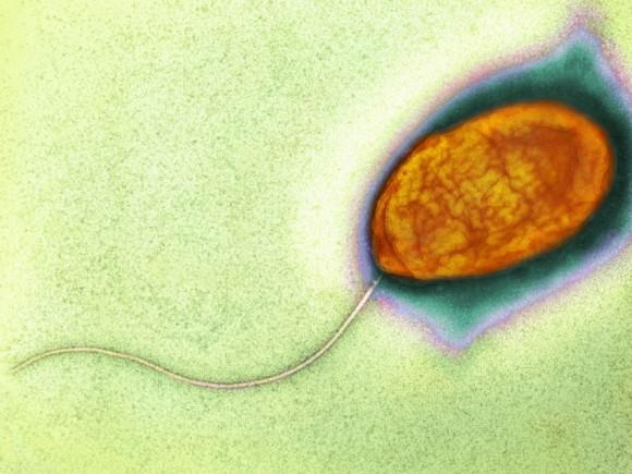 Das Bild zeigt das Bakterium Vibrio cholerae unter einem Elektronenmikroskop
