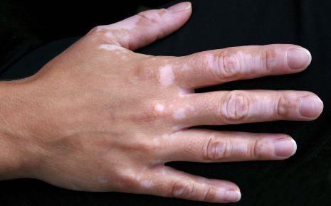 Hand mit Vitiligo