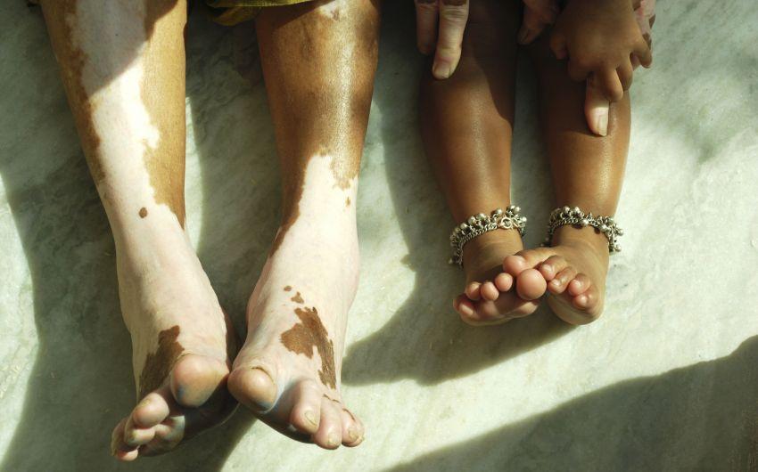 Füße mit Vitiligo