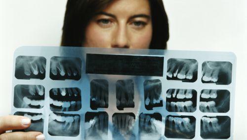 Das Bild zeigt eine Frau mit einem Röntgenbild von Zähnen.