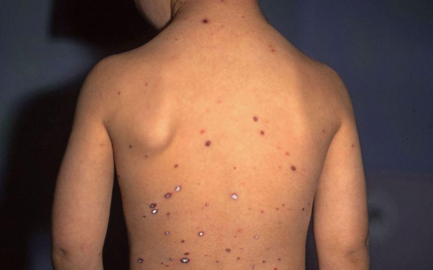 Das Bild zeigt den Rücken eines Jungen mit Ausschlag.