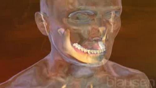 Zahnfleischentzündung Video