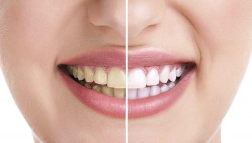 Das zweigeteilte Gesicht einer Frau: die rechte Hälfte mit gelben, die linke mit weißen Zähnen.