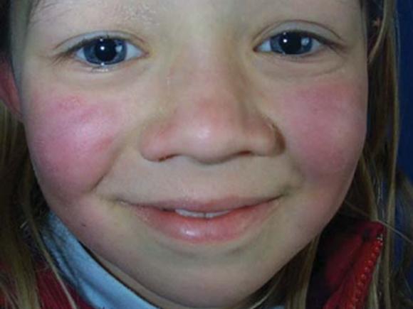 Ringelröteln-Hautausschlag auf den Wangen (Quelle: Wikimedia Commons, Kardelen Yangın, CC BY-SA 4.0)