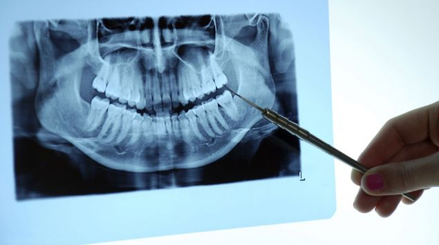 Ein Gebiss im Röntgenbild