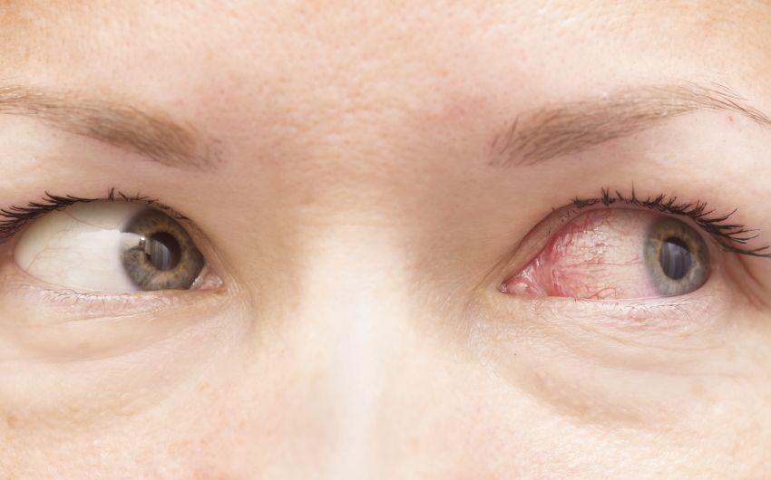 Bei einer Augengrippe ist das betroffene Auge gerötet.