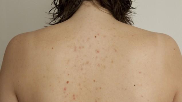 salicylsäure akne
