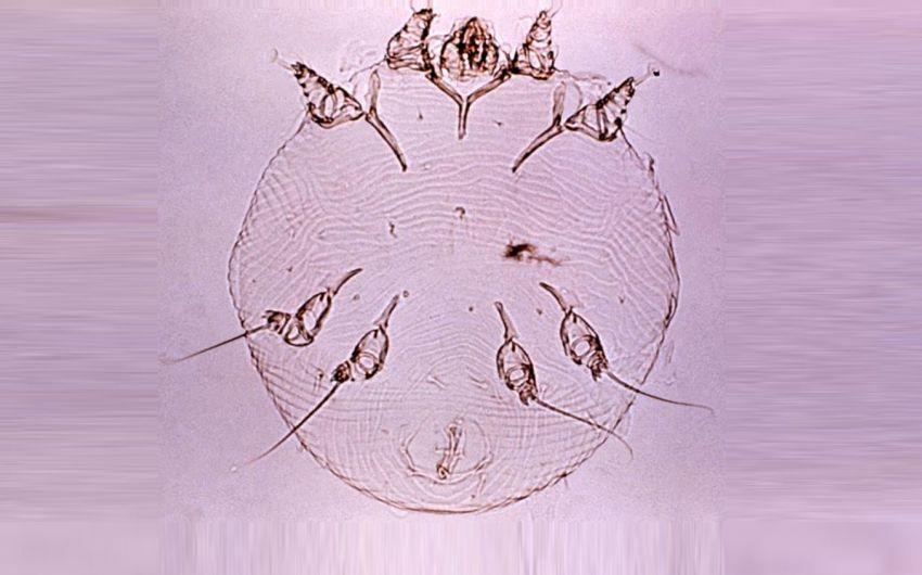 Aufnahme der Krätzmilbe Sarcoptes scabiei unter dem Mikrokop