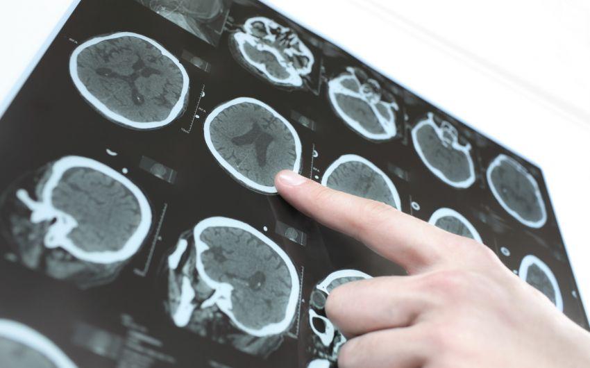 CT vom Schädel: Mithilfe einer Computertomographie kann der Arzt feststellen, ob weitere Schäden vorliegen