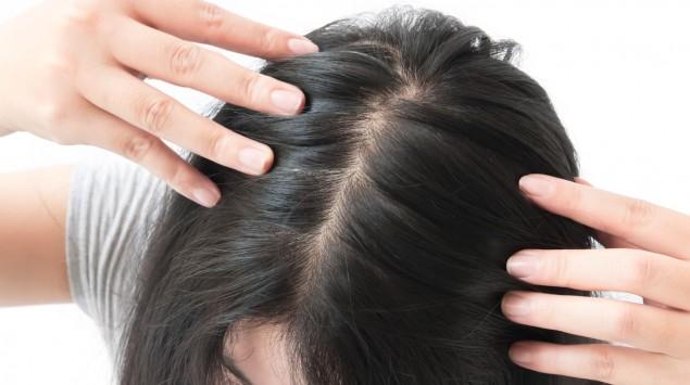 Eine Frau hat Haarausfall am Scheitel.