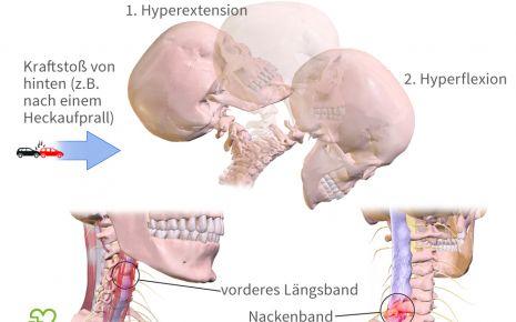 Eine grafische Darstellung des Unfallhergangs bei einem Schleudertrauma