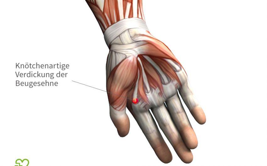 Schnellender Finger (Tendovaginitis stenosans, \