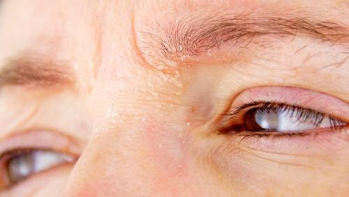 Nahaufnahme einer Person mit Schuppen im Bereich der Augenbrauen.