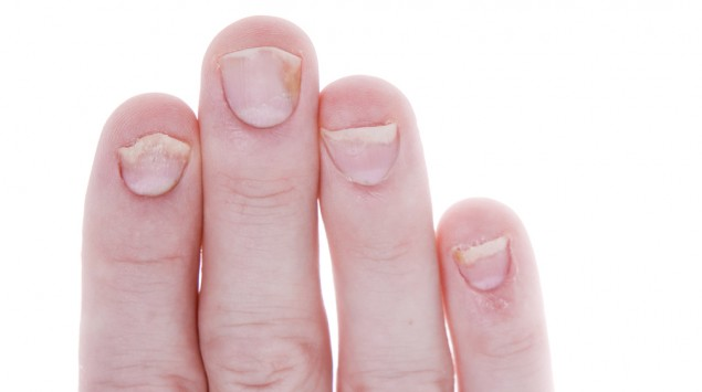 Schuppenflechte an den Fingernägeln