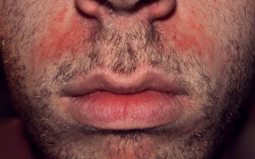 Das Bild zeigt ein seborrhoisches Ekzem im Gesicht.