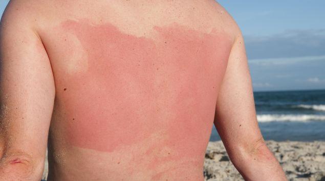 Das Bild zeigt den Rücken einer Person mit Sonnenbrand.
