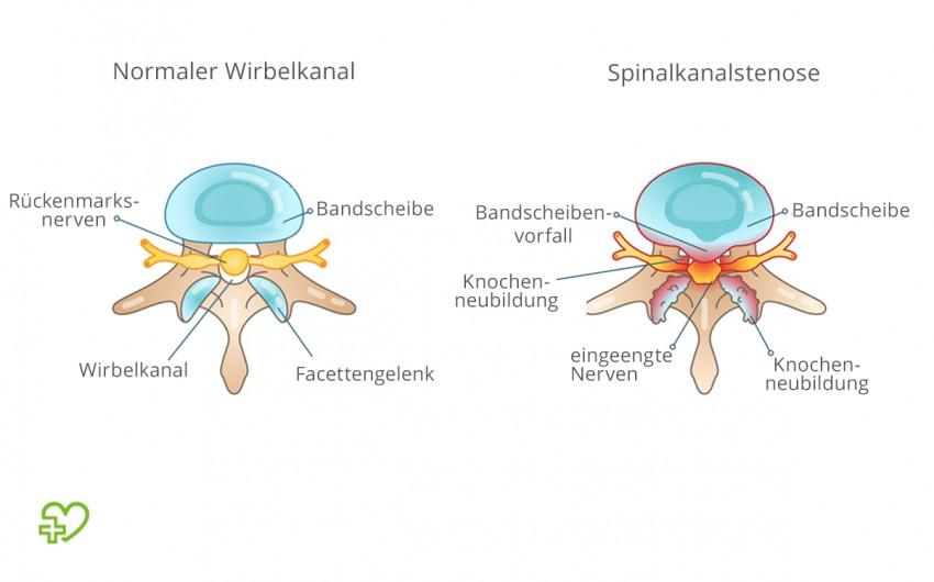 Schematische Darstellung der Ursachen einer Spinalkanalstenose